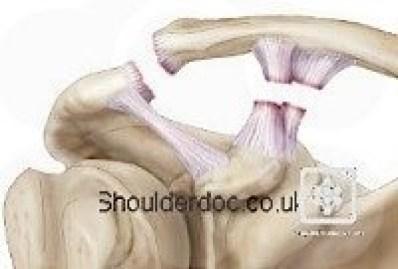 https://www.shoulderdoc.co.uk/images/uploaded/shoulderdoc_rockwood_3.jpg