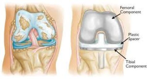 هشاشة العظام والنتوءات العظمية