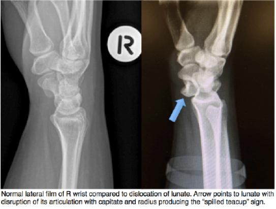 Lunate Dislocation Graphic 1