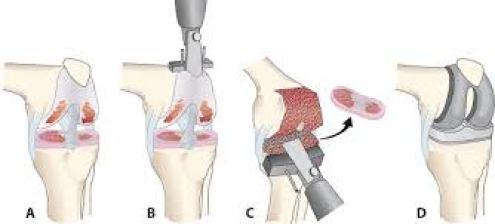أنواع مختلفة من زراعة الركبة
