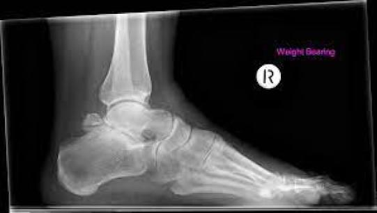 التهاب المفاصل تحت الكاحل على الأشعة السينية يعالج بالتنظير تحت الكاحل