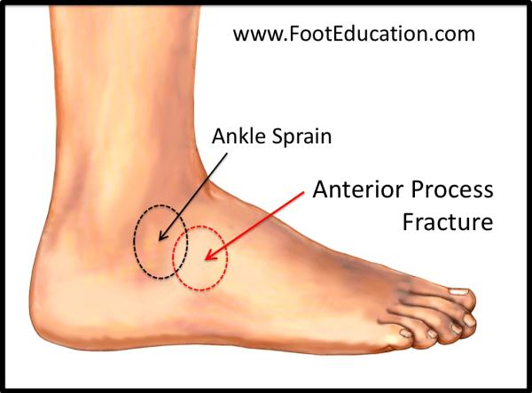 العملية الأمامية للعقبة -موقع الإصابة