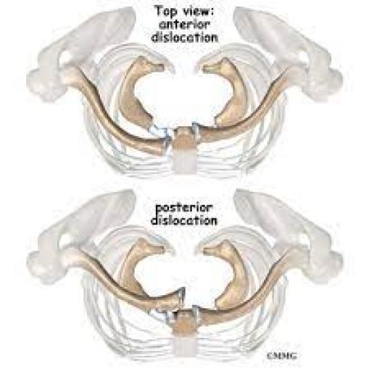 الخلع الأمامي والخلفي القصي الترقوي