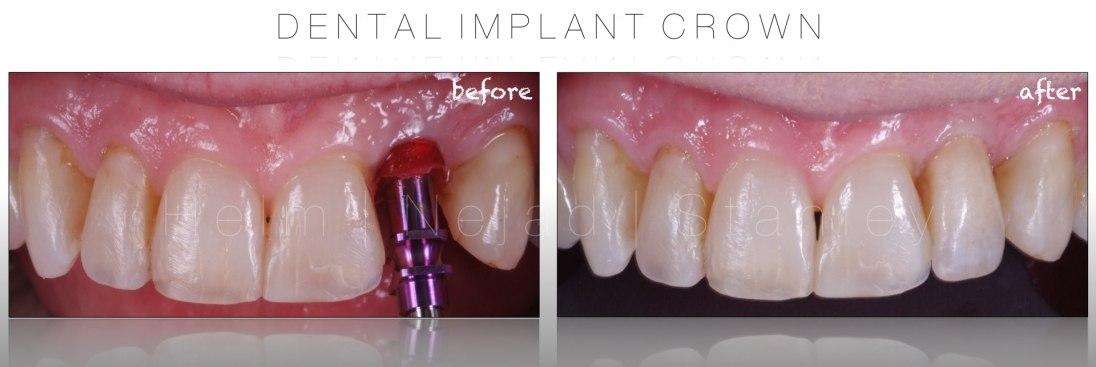 dental implant expert speaker