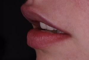 SLIP Stanley Lip Incisal Planning Lip Lift