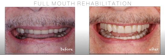 Biomimetic Full Mouth Rehabilitation