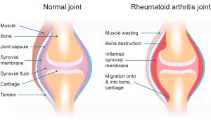 rheumatoid-arthritis-diagram