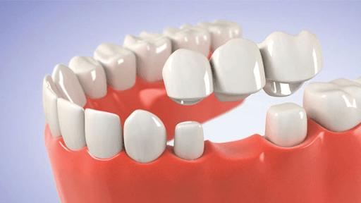 dental bridge graphic