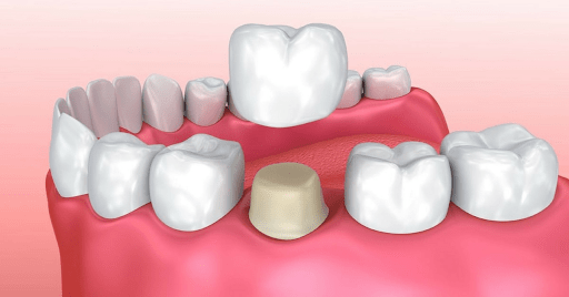 dental crown graphic