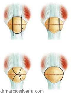 tratamentos para fratura da patela