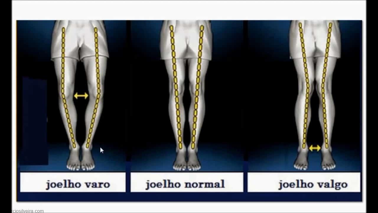 alinhamento do joelho