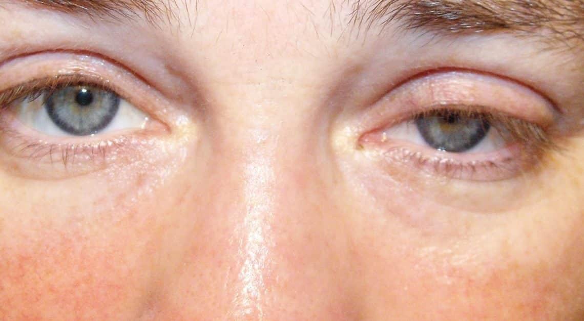 viziunea a scăzut într-o noapte picături oftalmice de acuitate vizuală
