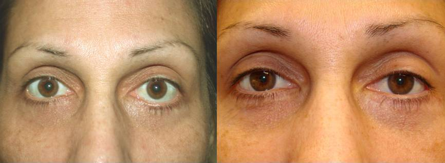 revisional blepharoplasty lower eyelid retraction cosmetic