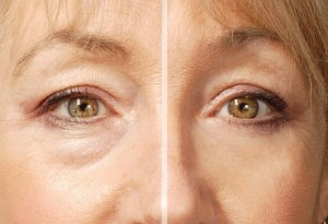 Eyelid-repair-dr-massry-beverly-hills