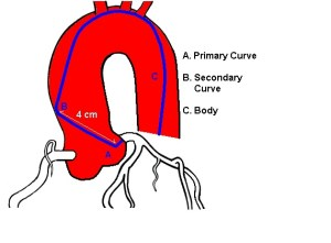 What is angiogram