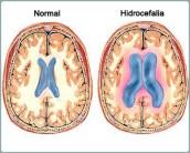 Hidrocefalia.