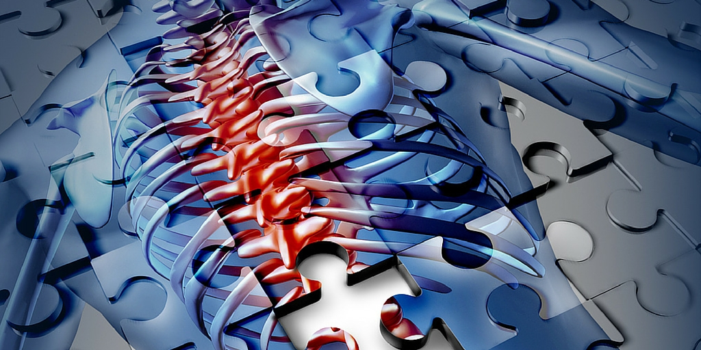 Chronic Pain and a Functional Medicine Approach