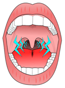 Snoring vibrations from uvula soft palate and throat credit:wikipedia