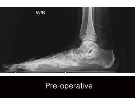 campitelli-flatfoot-preop