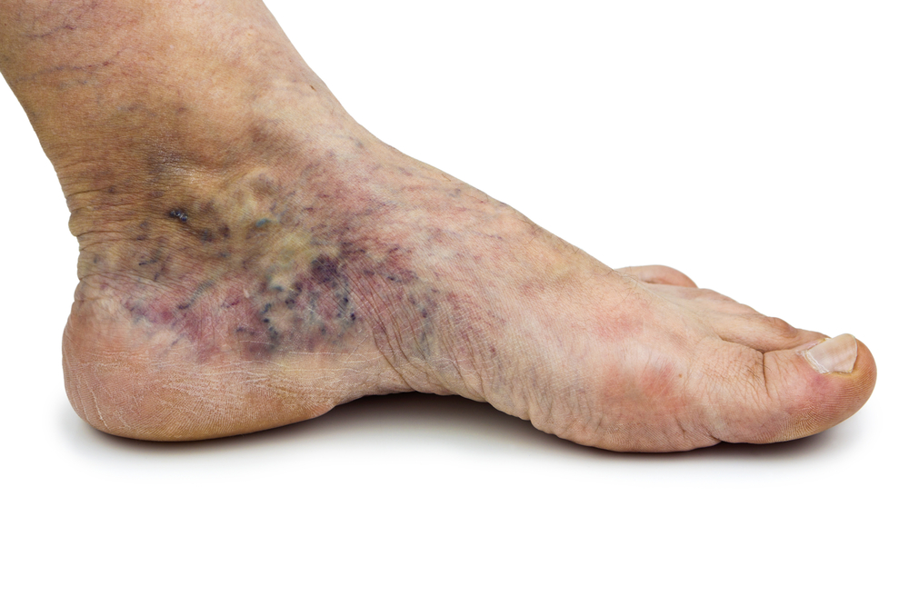 Varicose Veins Can Be Cause Of Foot Pain Dr Nicholas Campitelli