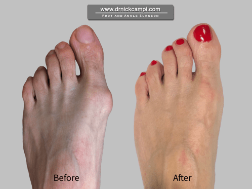 Bunion surgeon Akron Ohio