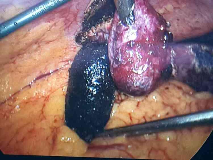 laparoscopic gall bladder surgery