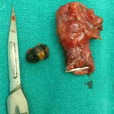 very small contracted gall bladder