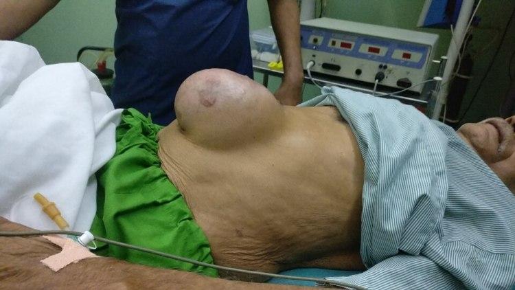 ventral hernia surgery noida delhi