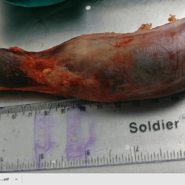 19 cm long gall bladder. Is it the longest ?