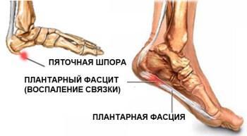 stopa-shpora