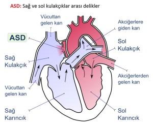 Kalp Delikliği ASD