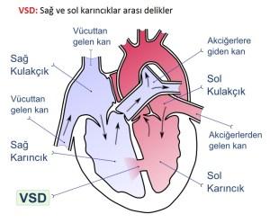 Kalp Delikliği