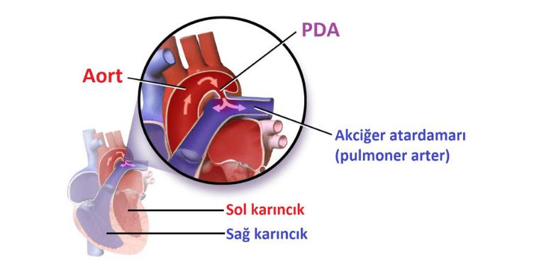 PDA Tanı ve Tedavisi