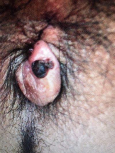 trombose hemorroidária.