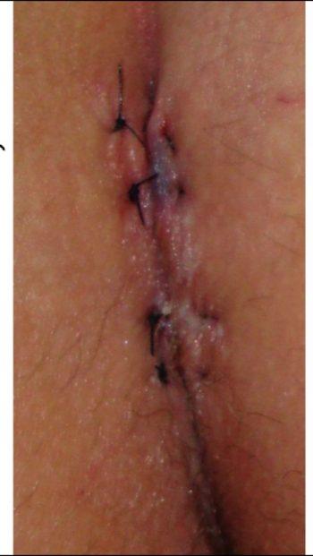 cisto pilonidal cirurgia fechada com laser.