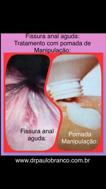 fissura anal aguda tratamento com pomada de manipulação.