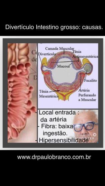 diverticulite tratamento clinico e cirúrgico.
