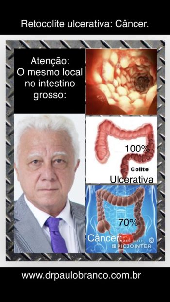 colite ulcerativa como causa do cancer do intestino grosso.