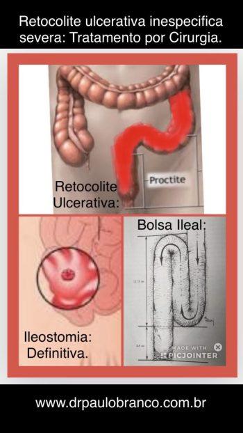 cirurgia para a retocolite ulcerativa.