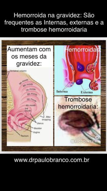 hemorroida trombosada na gravidez.