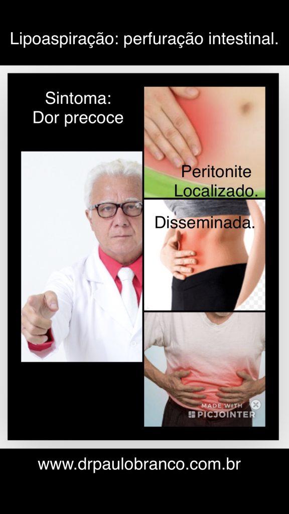 perfuracao intestinal com peritonite na piloaspiração