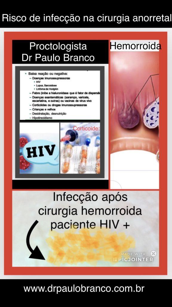 hiv e a infecção na cirugia da hemorroida