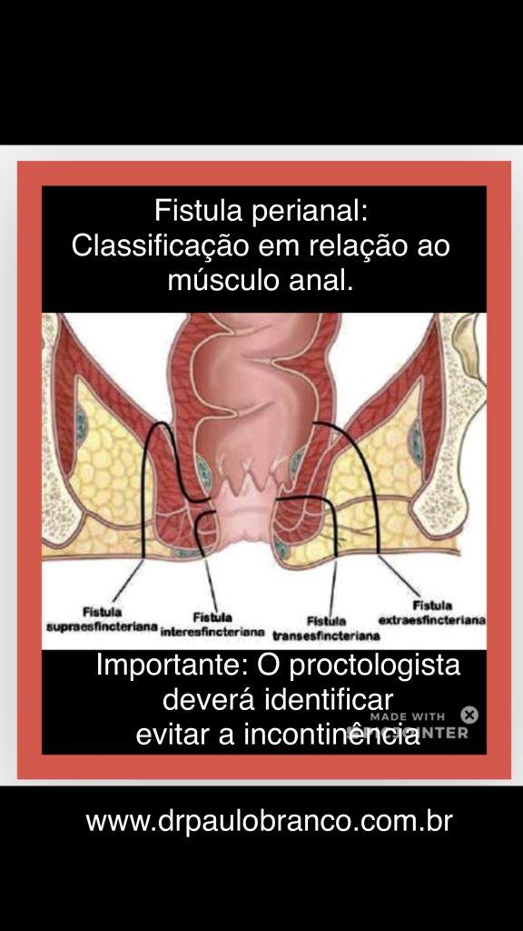 fistula perianal classificação