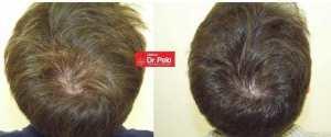 Resultados tratamiento capilar