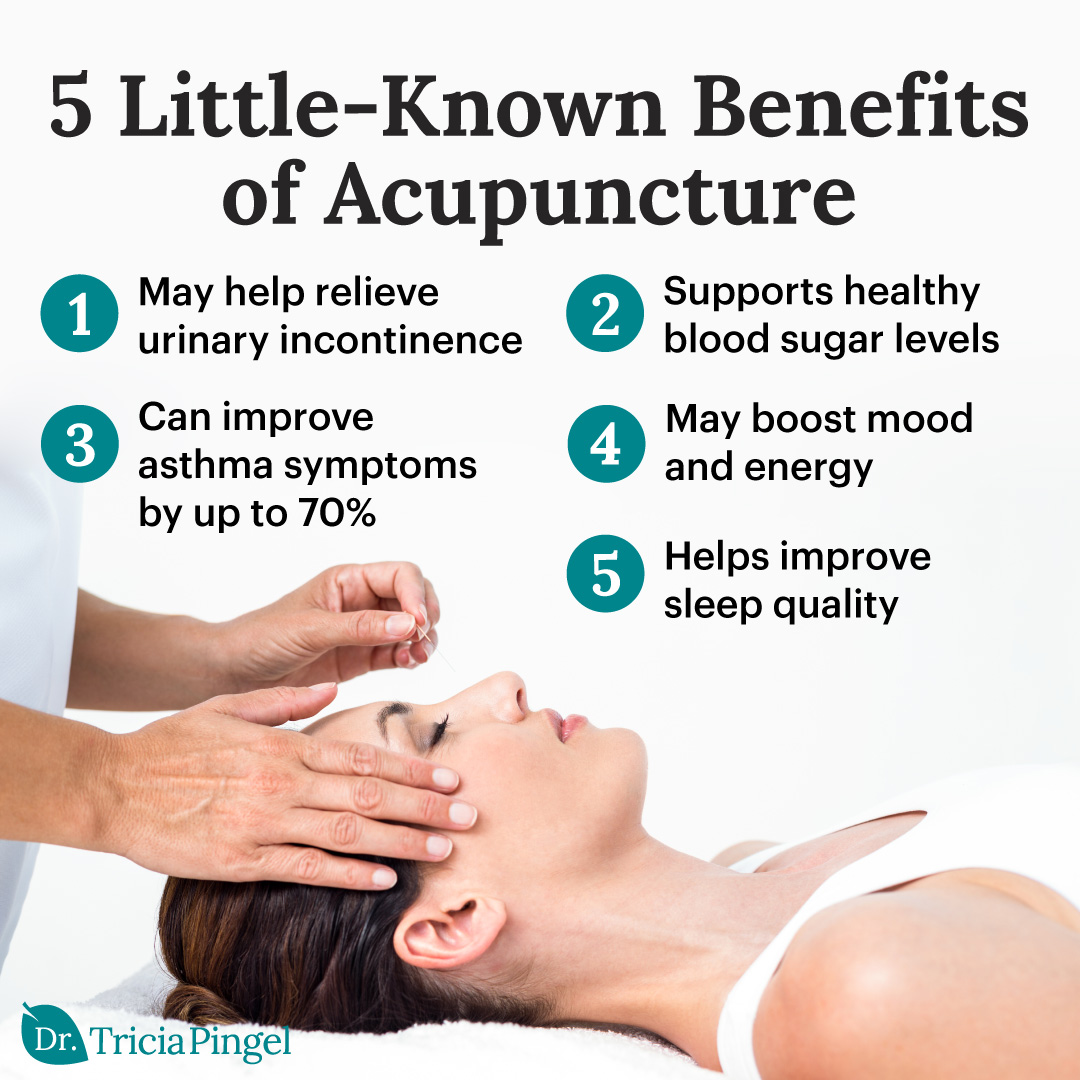 Health benefits of acupuncture - Dr. Pingel