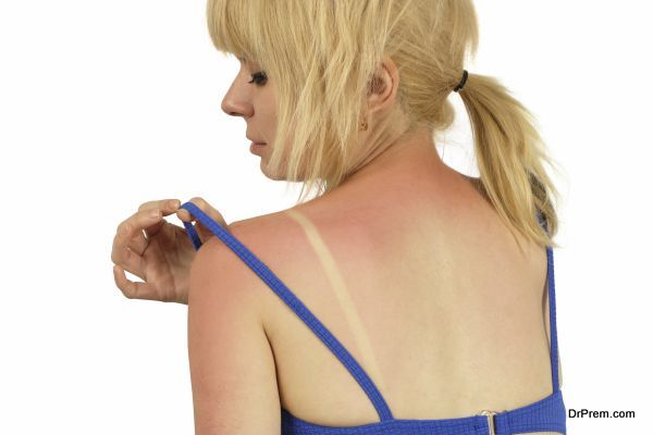 ivy rash (3)