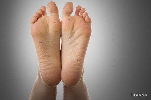 Feet, plantar warts, skin disease, dermatology