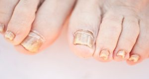 How to deal with chipped nails