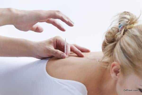 acupuncture technique (2)