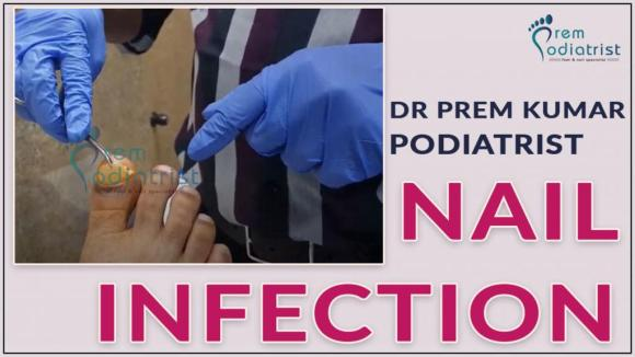 nail infection chennai